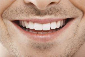 Всегда ли белизна зубов – признак их здоровья