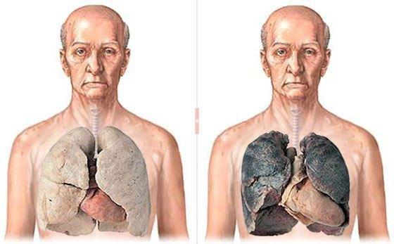 Что происходит с легкими во время курения