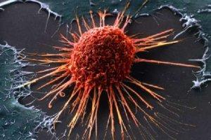 Рак – новый миф нашего времени?!
