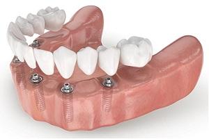 Несъемное протезирование зубов Имплант Сити